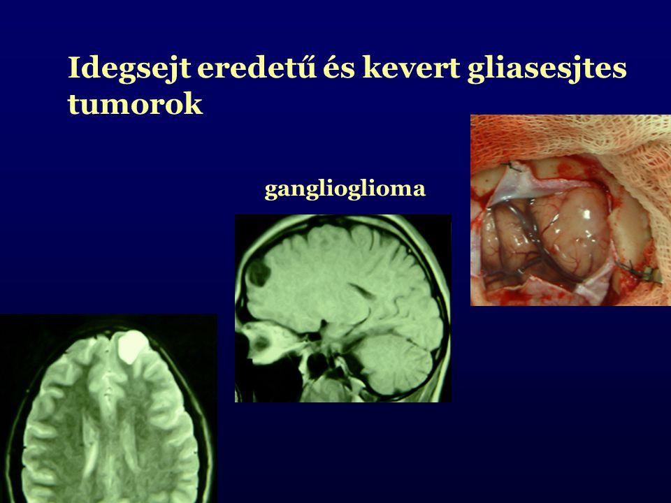 Idegsejt eredetű és kevert gliasesjtes tumorok