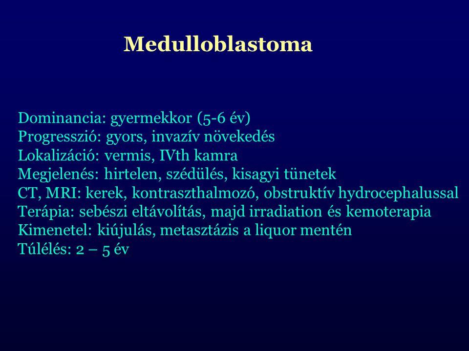 Medulloblastoma Dominancia: gyermekkor (5-6 év) Progresszió: gyors, invazív növekedés. Lokalizáció: vermis, IVth kamra.