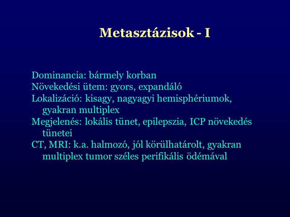 Metasztázisok - I Dominancia: bármely korban. Növekedési ütem: gyors, expandáló. Lokalizáció: kisagy, nagyagyi hemisphériumok, gyakran multiplex.