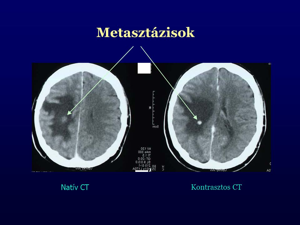 Metasztázisok Natív CT Kontrasztos CT