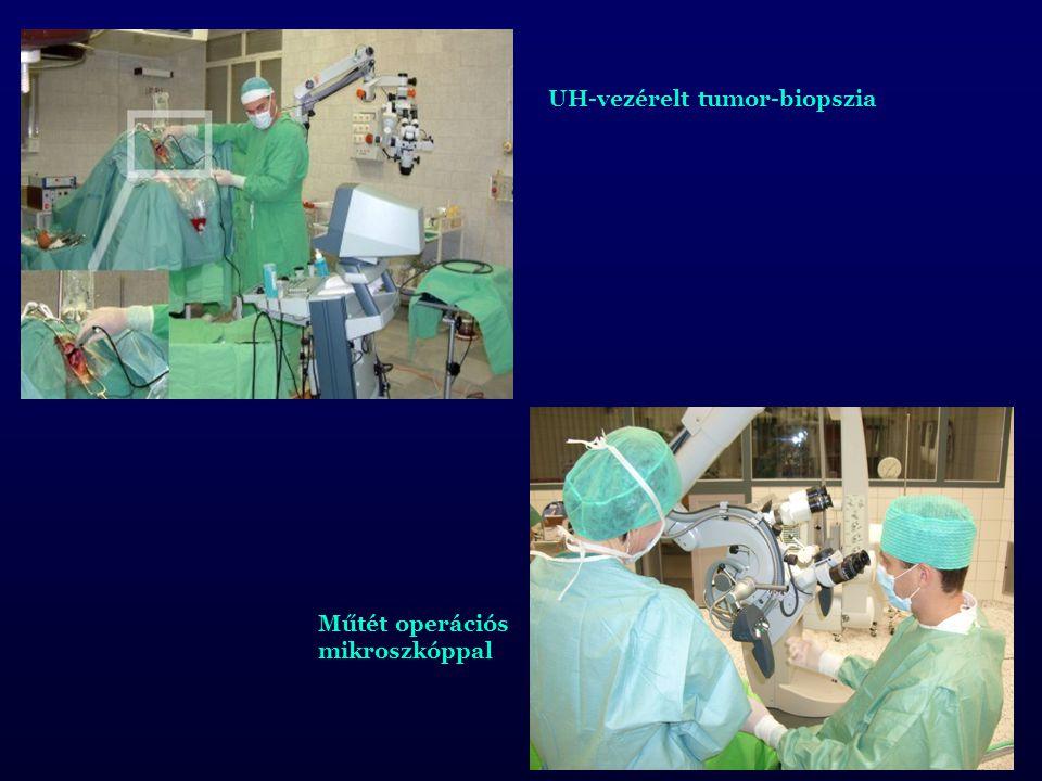 UH-vezérelt tumor-biopszia