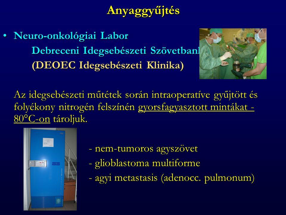 Anyaggyűjtés Neuro-onkológiai Labor Debreceni Idegsebészeti Szövetbank
