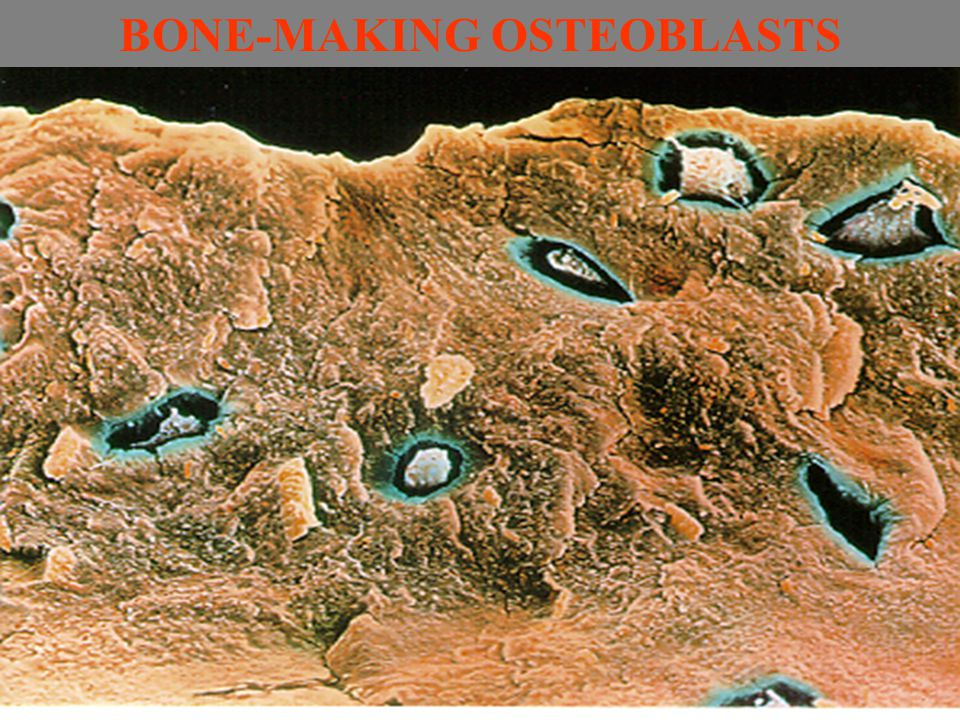 BONE-MAKING OSTEOBLASTS