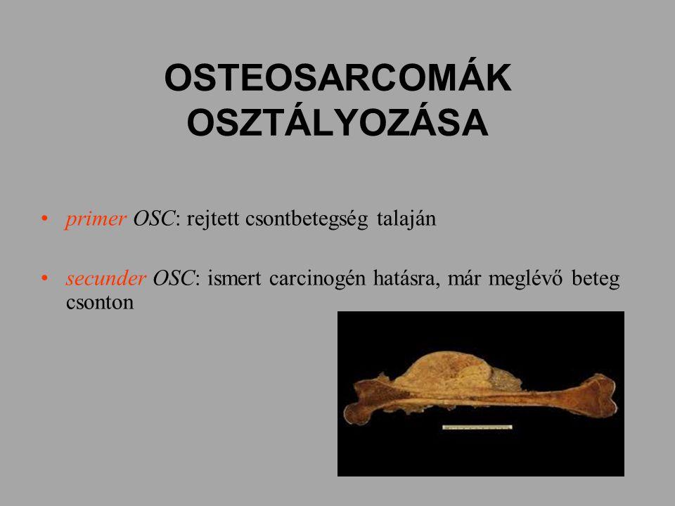 OSTEOSARCOMÁK OSZTÁLYOZÁSA