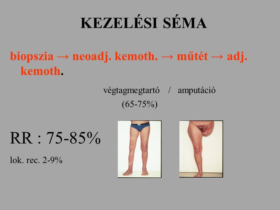 KEZELÉSI SÉMA biopszia → neoadj. kemoth. → műtét → adj. kemoth. végtagmegtartó / amputáció. (65-75%)