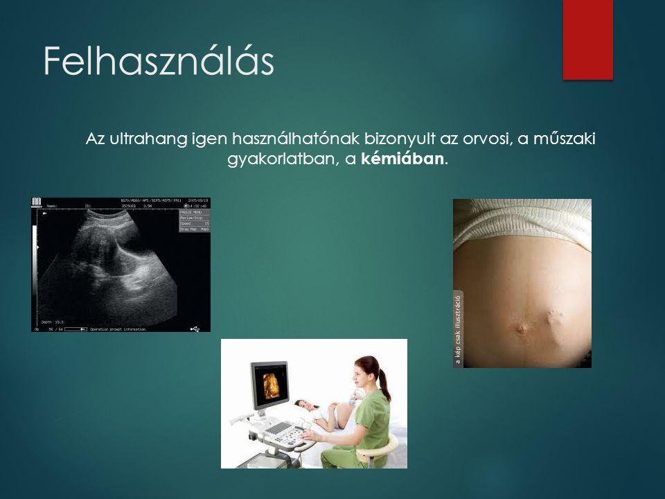 Felhasználás Az ultrahang igen használhatónak bizonyult az orvosi, a műszaki gyakorlatban, a kémiában.