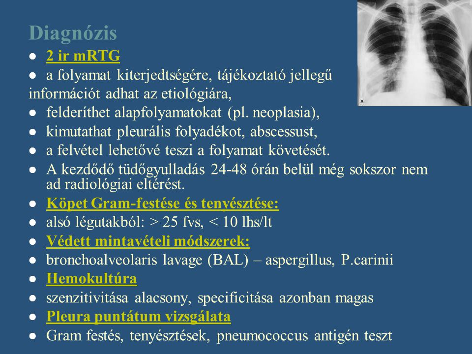 Diagnózis 2 ir mRTG a folyamat kiterjedtségére, tájékoztató jellegű
