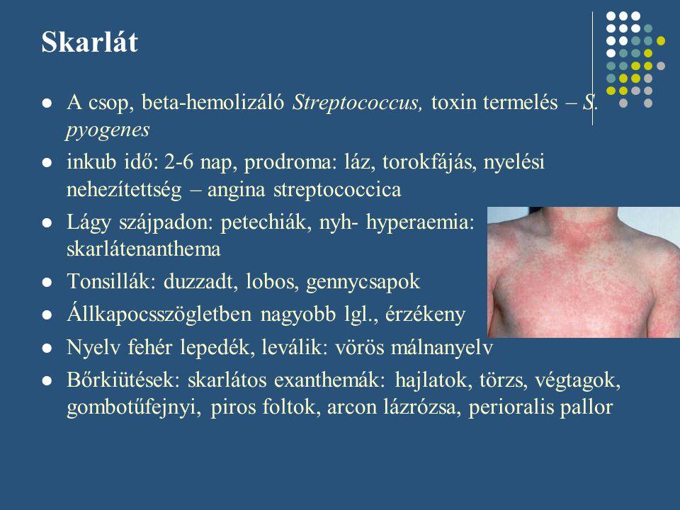 Skarlát A csop, beta-hemolizáló Streptococcus, toxin termelés – S. pyogenes.
