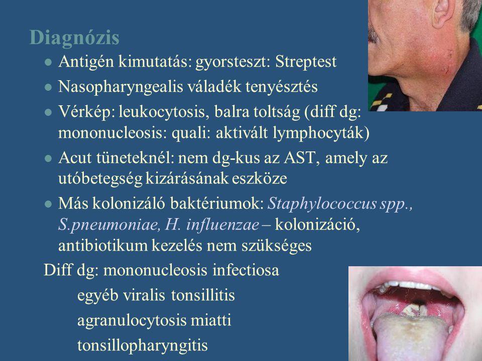 Diagnózis Antigén kimutatás: gyorsteszt: Streptest