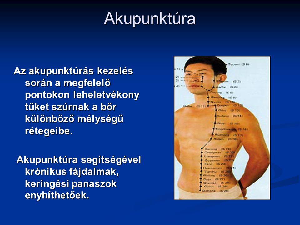 Akupunktúra Az akupunktúrás kezelés során a megfelelő pontokon leheletvékony tűket szúrnak a bőr különböző mélységű rétegeibe.
