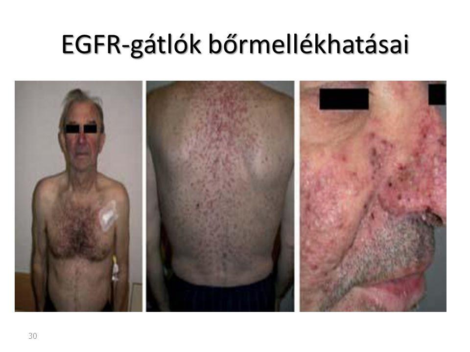 EGFR-gátlók bőrmellékhatásai
