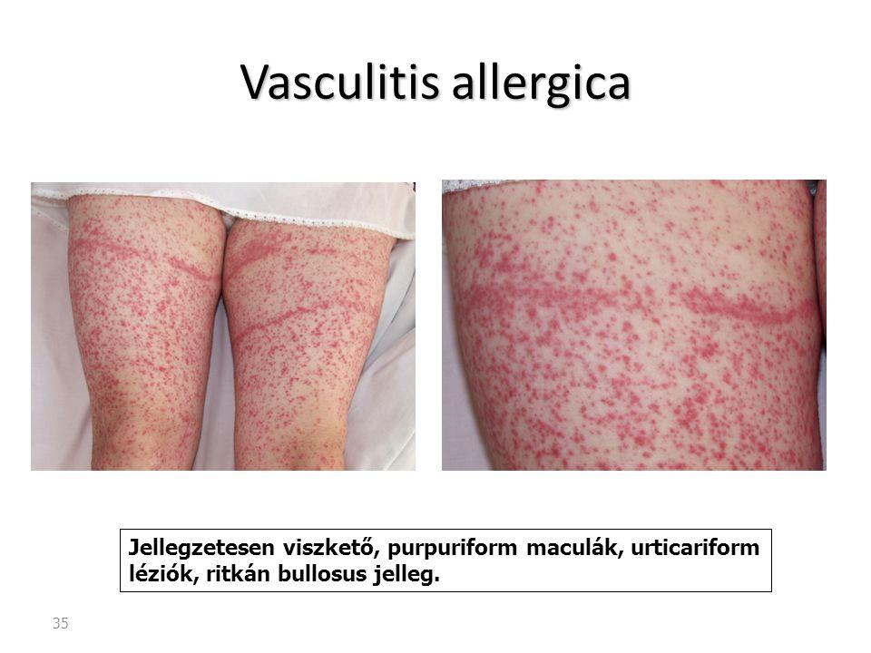 Vasculitis allergica Jellegzetesen viszkető, purpuriform maculák, urticariform léziók, ritkán bullosus jelleg.