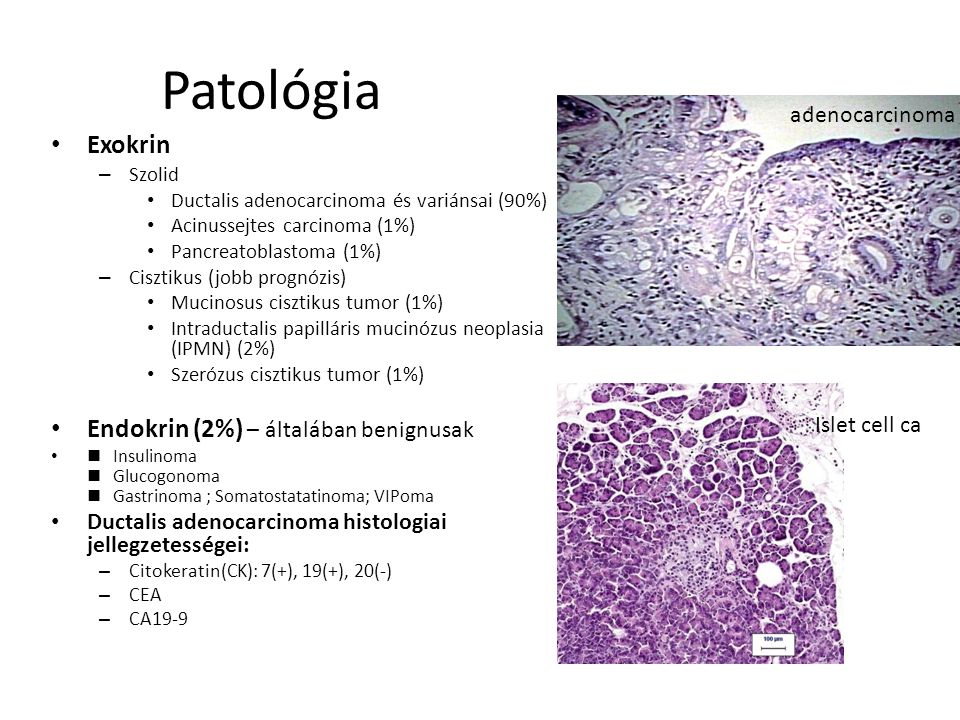 Patológia Exokrin Endokrin (2%) – általában benignusak adenocarcinoma