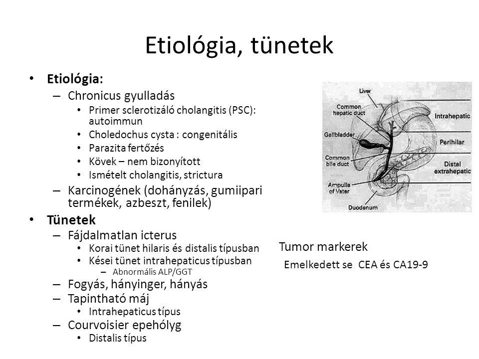 Etiológia, tünetek Etiológia: Tünetek Chronicus gyulladás