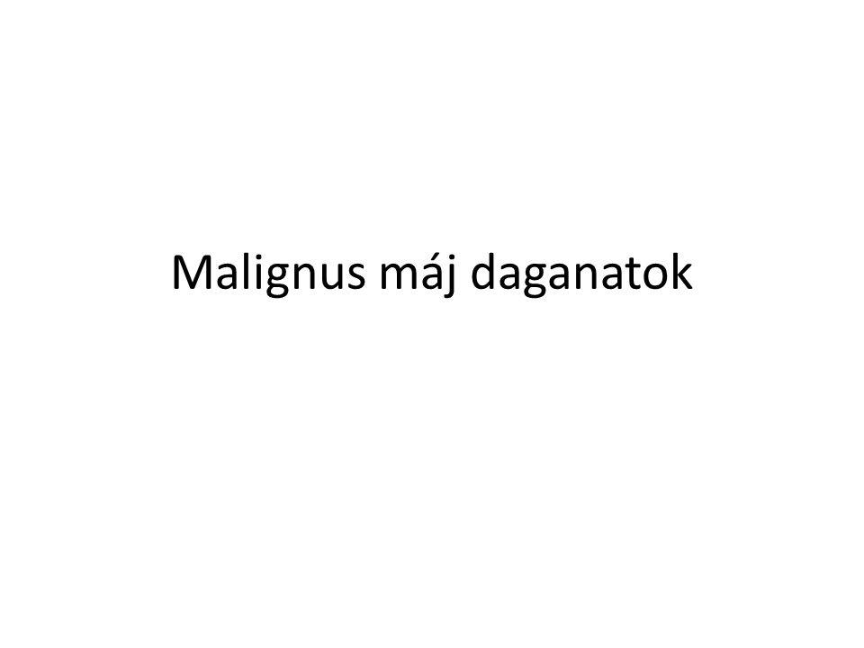 Malignus máj daganatok
