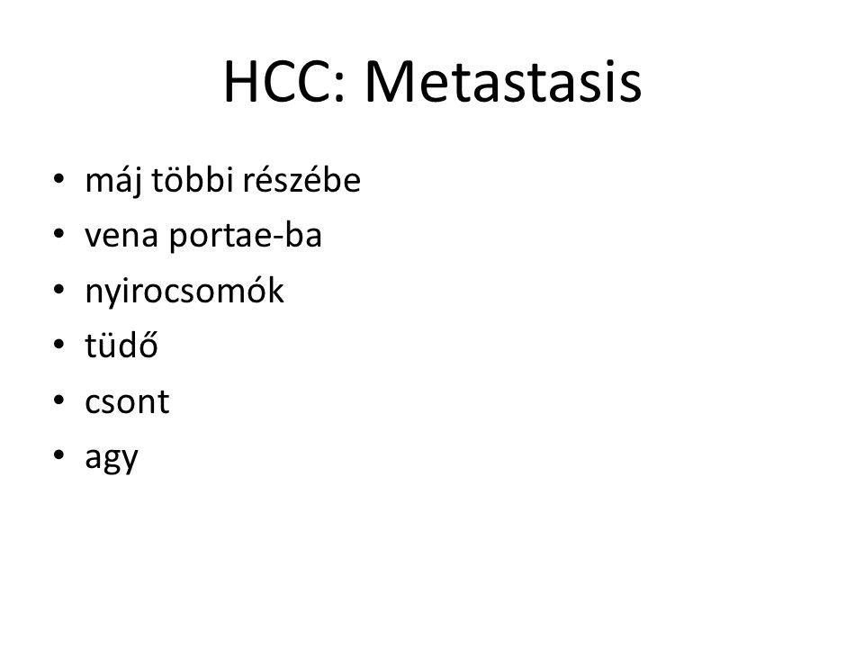 HCC: Metastasis máj többi részébe vena portae-ba nyirocsomók tüdő