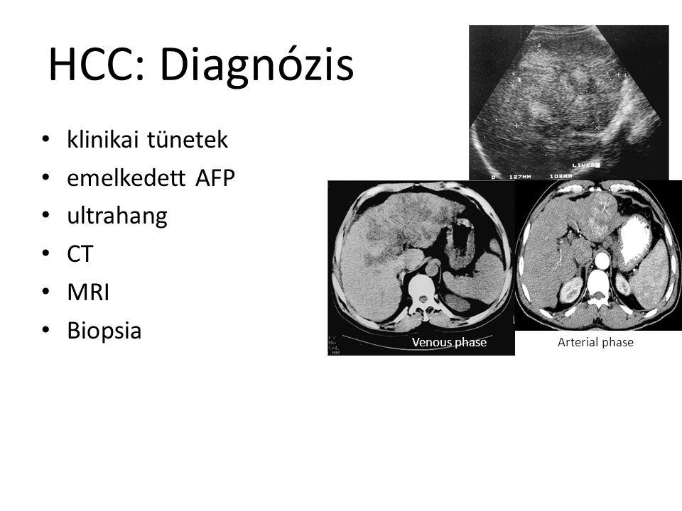 HCC: Diagnózis klinikai tünetek emelkedett AFP ultrahang CT MRI