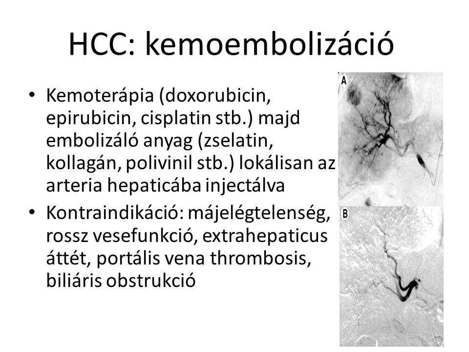HCC: kemoembolizáció