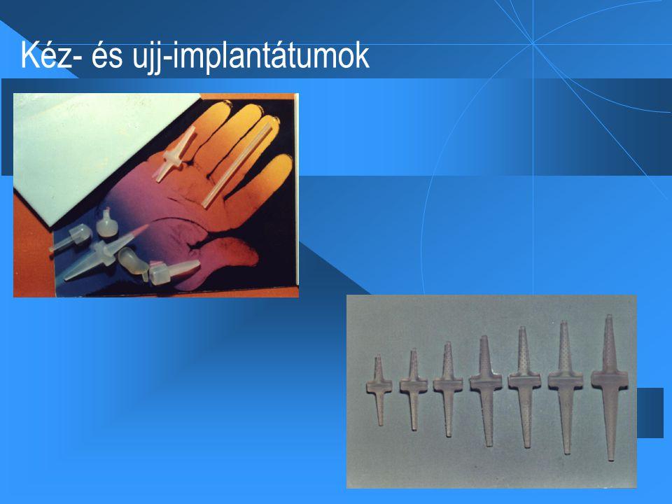 Kéz- és ujj-implantátumok
