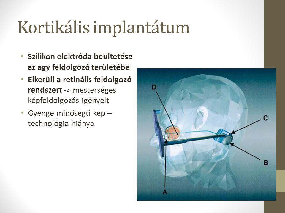 Kortikális implantátum
