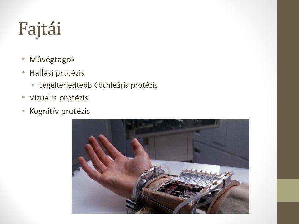 Fajtái Művégtagok Hallási protézis Vizuális protézis Kognitív protézis