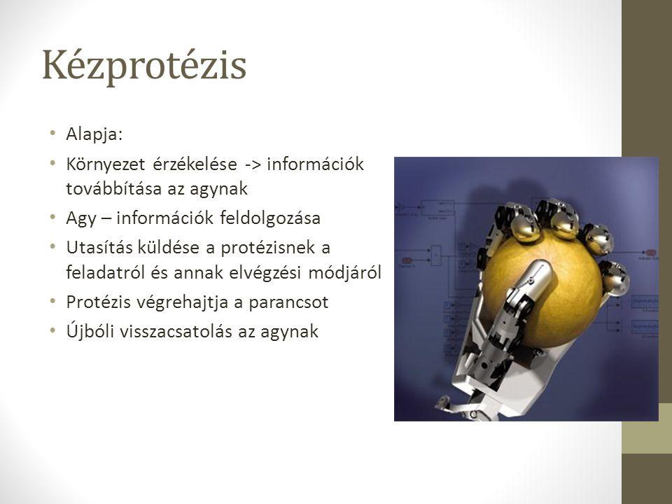 Kézprotézis Alapja: Környezet érzékelése -> információk továbbítása az agynak. Agy – információk feldolgozása.