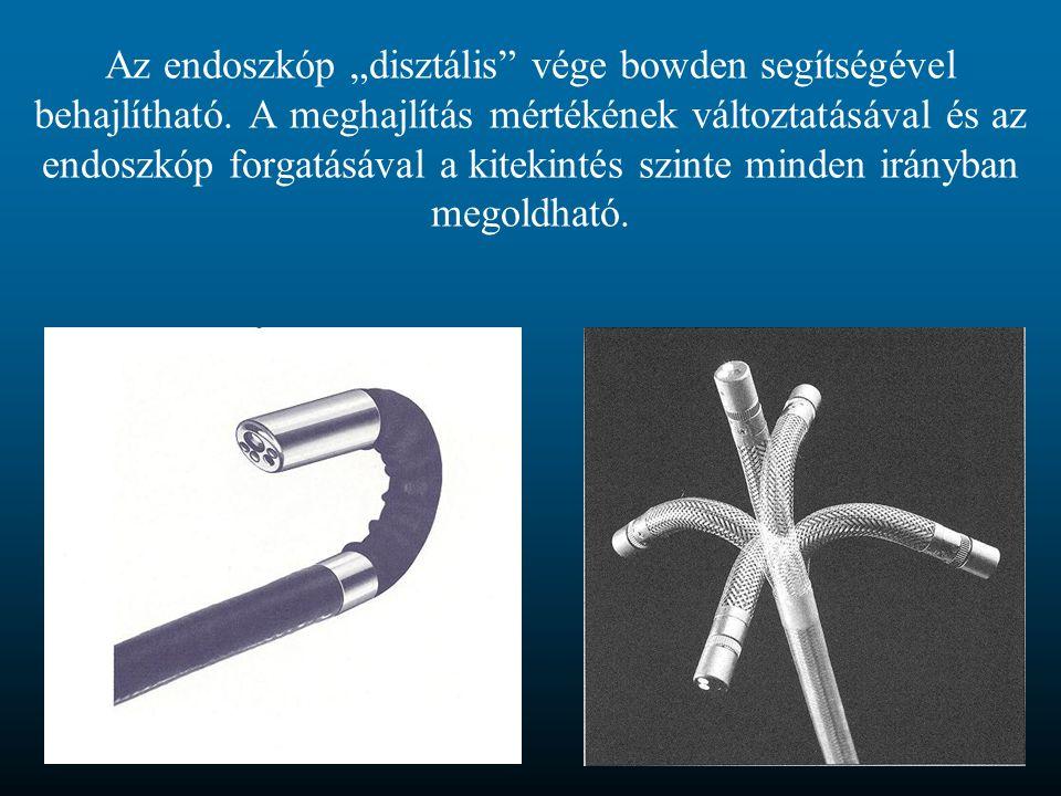 """Az endoszkóp """"disztális vége bowden segítségével behajlítható"""