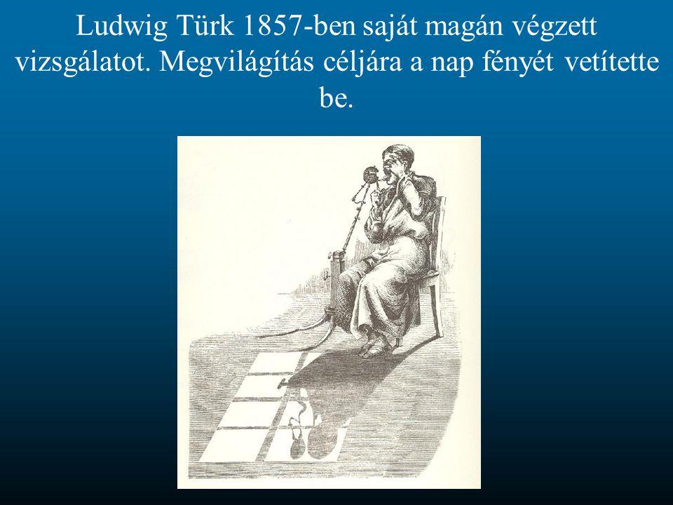 Ludwig Türk 1857-ben saját magán végzett vizsgálatot