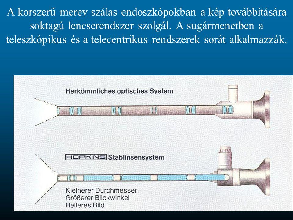 A korszerű merev szálas endoszkópokban a kép továbbítására soktagú lencserendszer szolgál.