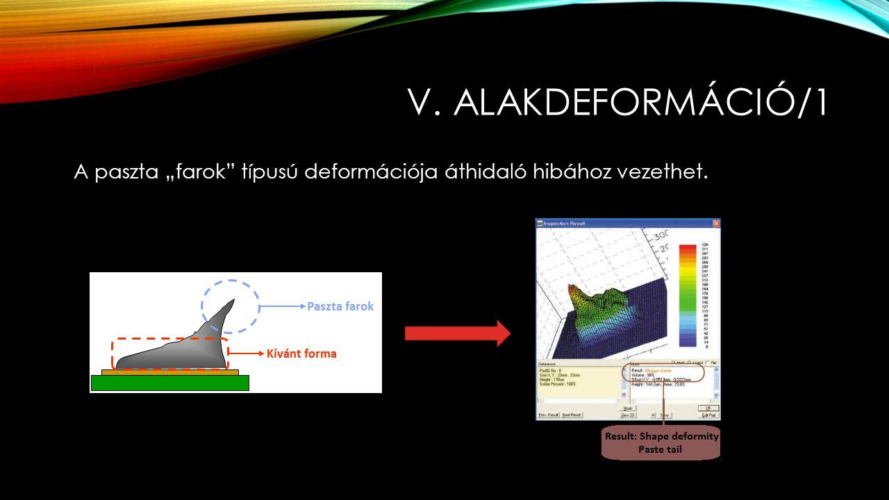 """v. alakdeformáció/1 A paszta """"farok típusú deformációja áthidaló hibához vezethet."""
