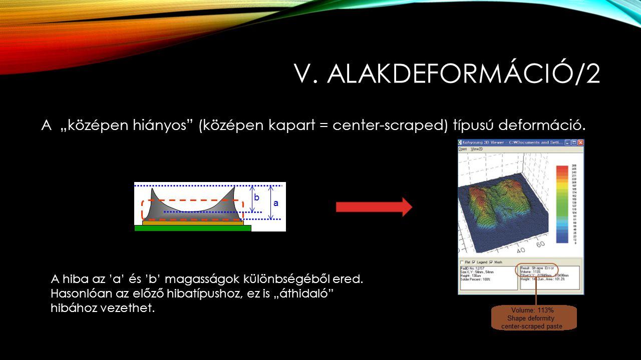 """v. alakdeformáció/2 A """"középen hiányos (középen kapart = center-scraped) típusú deformáció. A hiba az 'a' és 'b' magasságok különbségéből ered."""