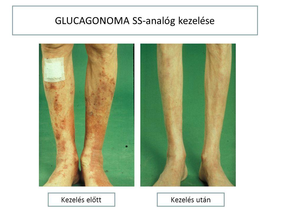 GLUCAGONOMA SS-analóg kezelése
