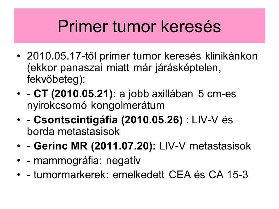 Primer tumor keresés 2010.05.17-től primer tumor keresés klinikánkon (ekkor panaszai miatt már járásképtelen, fekvőbeteg):