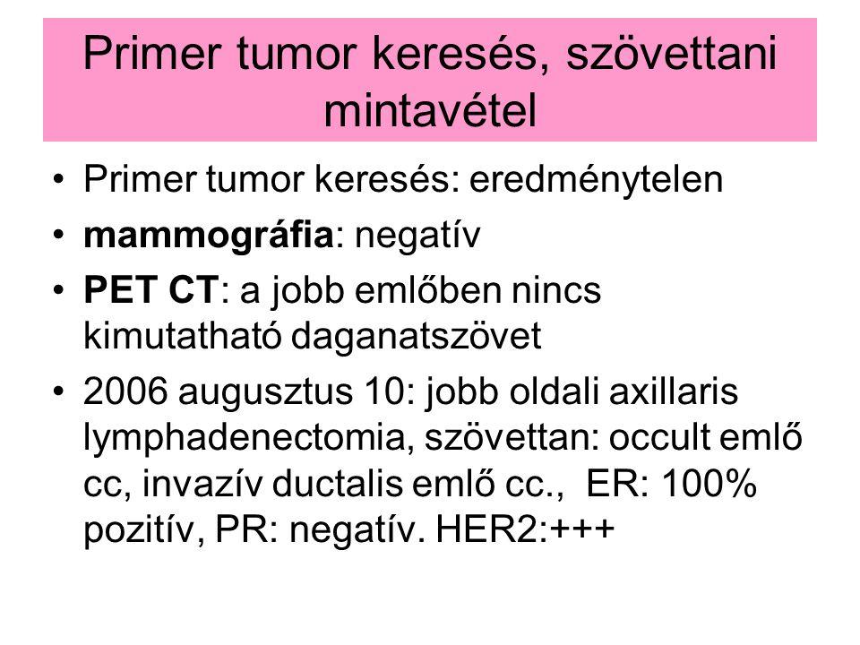 Primer tumor keresés, szövettani mintavétel