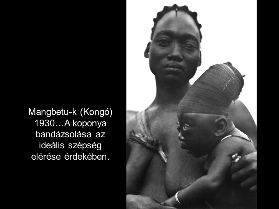 Mangbetu-k (Kongó) 1930…A koponya bandázsolása az ideális szépség elérése érdekében.