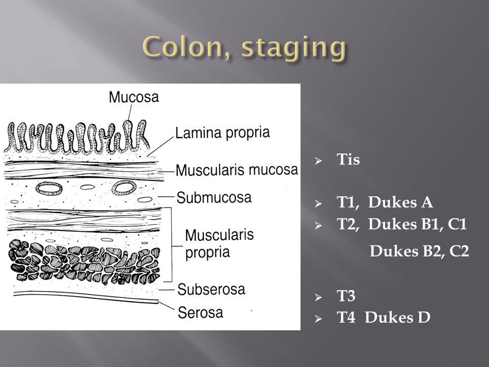 Colon, staging Dukes B2, C2 Tis T1, Dukes A T2, Dukes B1, C1 T3