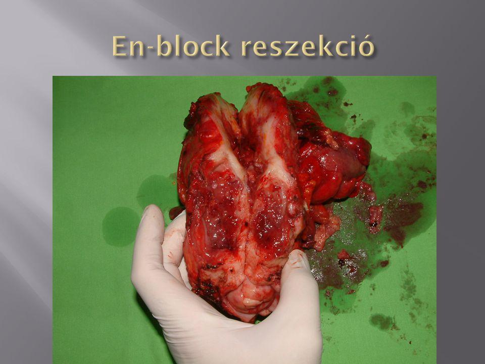 En-block reszekció