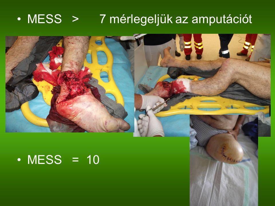 MESS > 7 mérlegeljük az amputációt