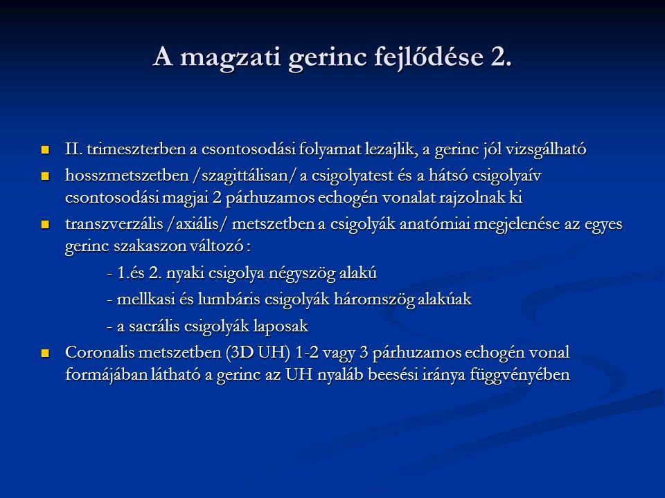A magzati gerinc fejlődése 2.
