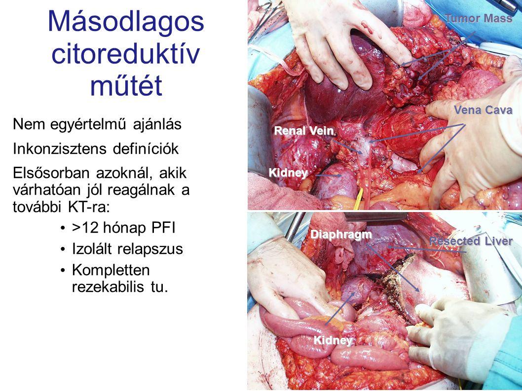 Másodlagos citoreduktív műtét