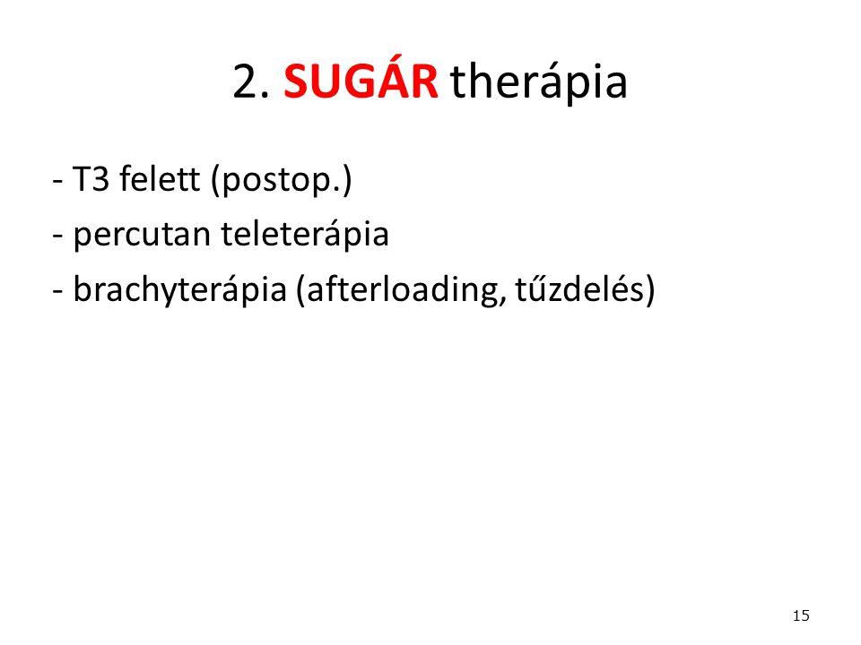 2. SUGÁR therápia - T3 felett (postop.) - percutan teleterápia