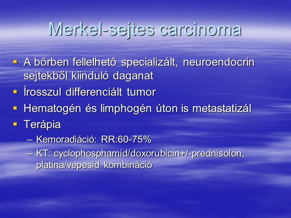 Merkel-sejtes carcinoma