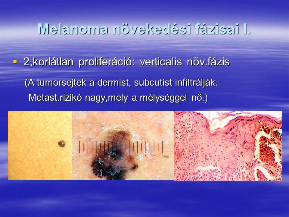 Melanoma növekedési fázisai I.