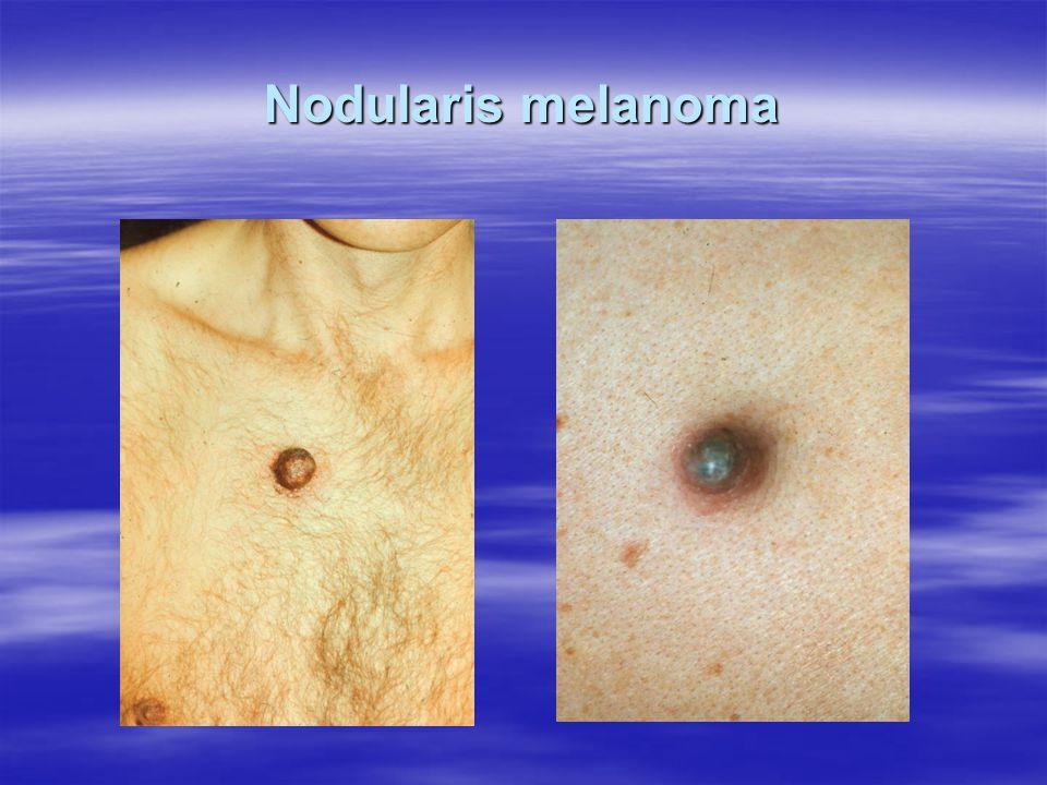 Nodularis melanoma