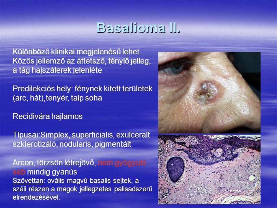 Basalioma II. Különbözô klinikai megjelenésű lehet. Közös jellemzô az áttetszô, fénylô jelleg, a tág hajszálerek jelenléte.