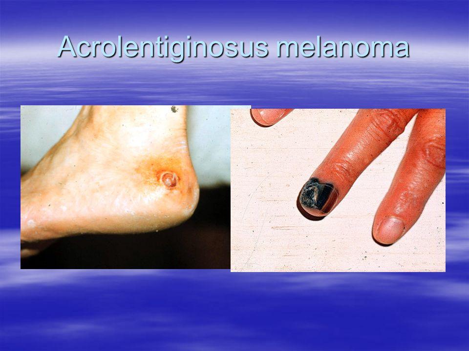Acrolentiginosus melanoma
