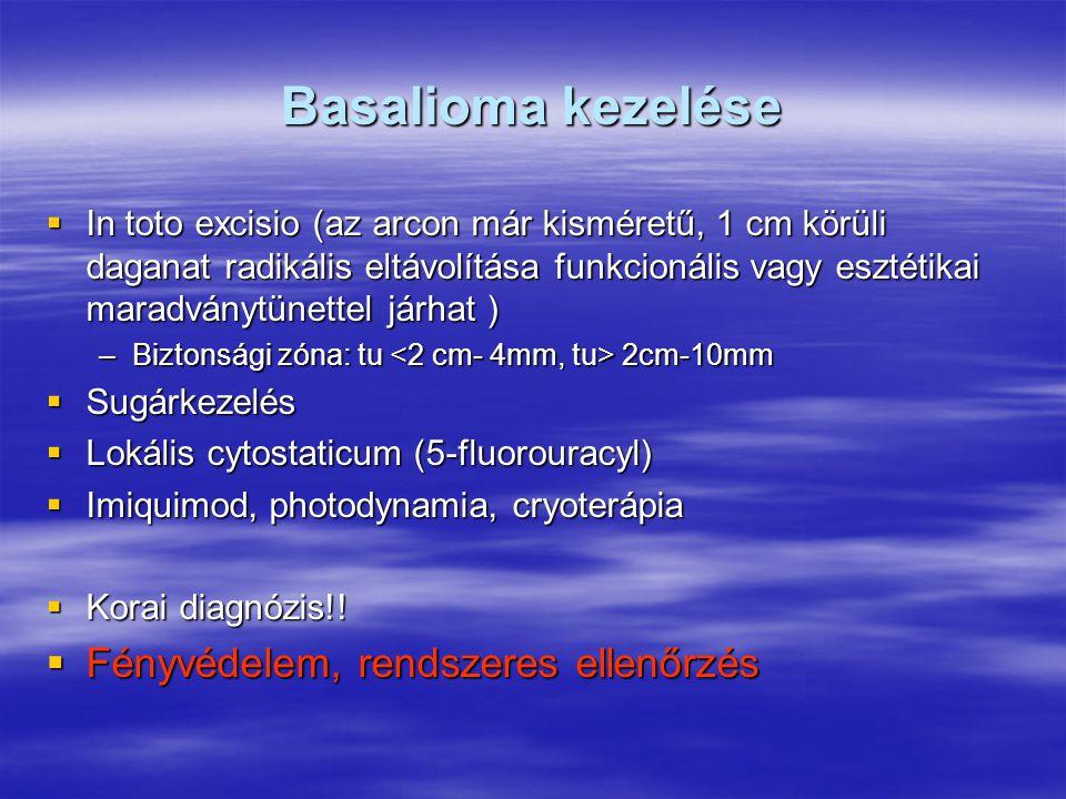 Basalioma kezelése Fényvédelem, rendszeres ellenőrzés