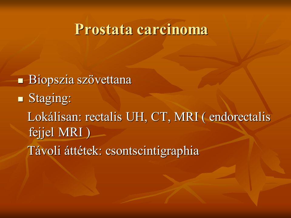 Prostata carcinoma Biopszia szövettana Staging:
