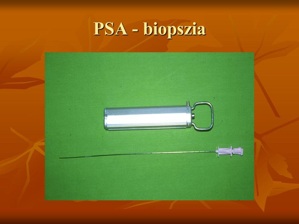 PSA - biopszia