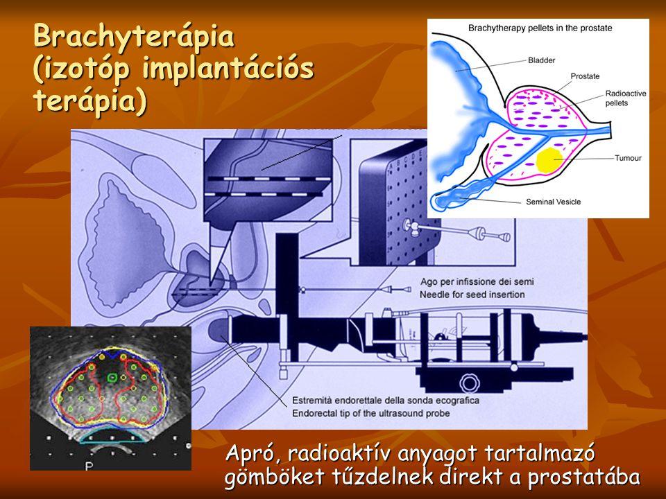 Brachyterápia (izotóp implantációs terápia)